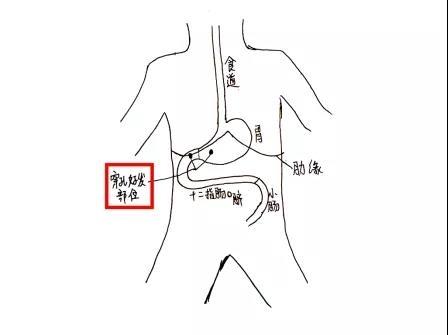 医生手绘图示,消化道穿孔好发部位